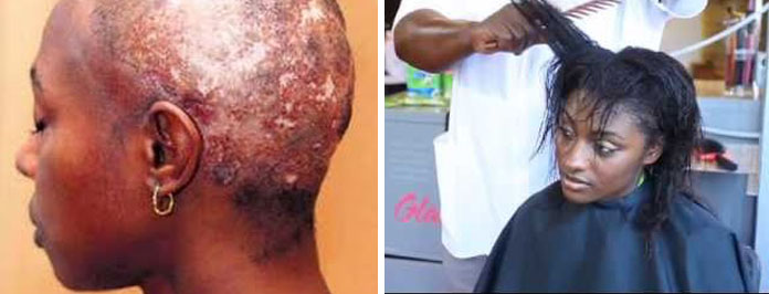 Warning The Irreversible Damage of Chemical Relaxers Must Read